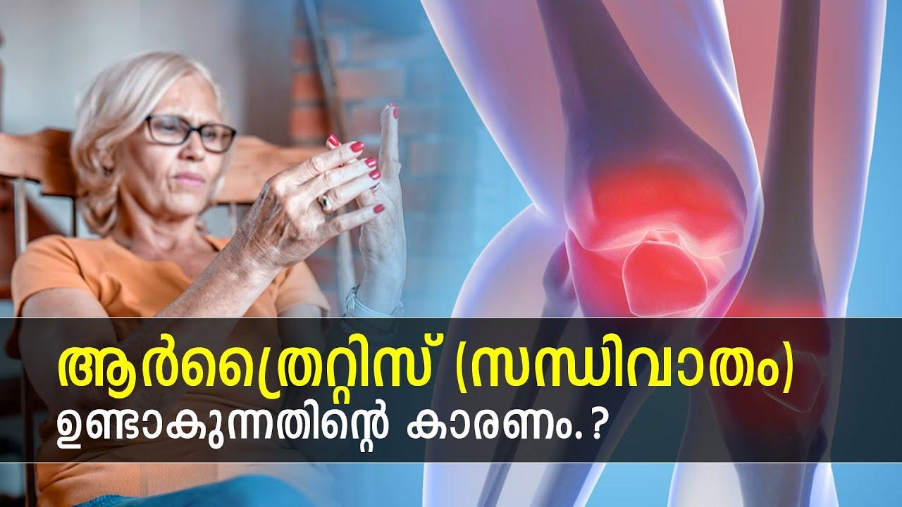 ആര്ത്രൈറ്റിസ് (സന്ധിവാതം) ഉണ്ടാകുന്നതിന്റെ കാരണം.? | Causes of Arthritis? | Ethnic Health Court