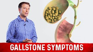 Gallstone Symptoms & Causes