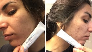 Proactiv MD | Acne Solution - Before & After