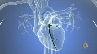 هذا الصباح-عملية القسطرة.. ثورة في علاج أمراض القلب