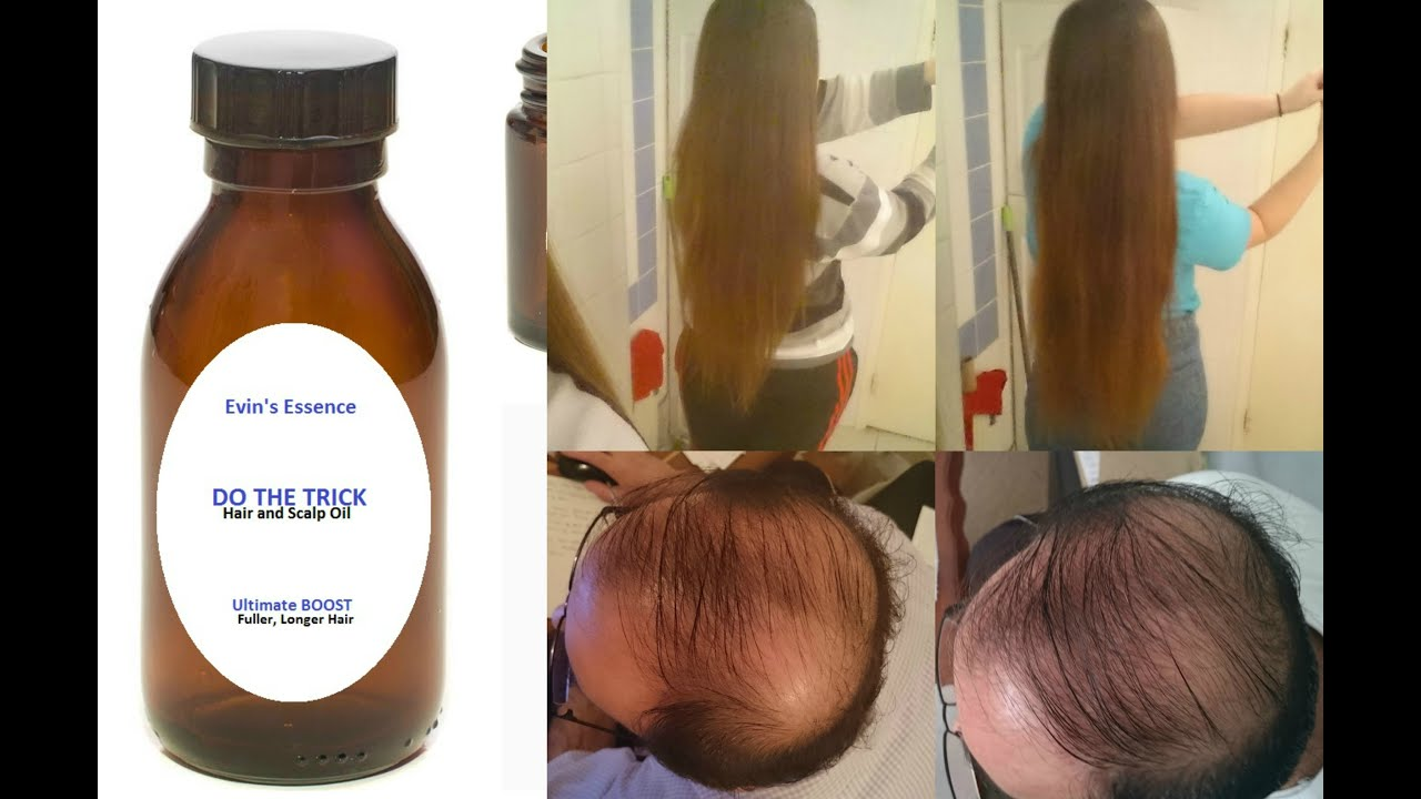 How To Stop Frontal Hair Loss Naturally