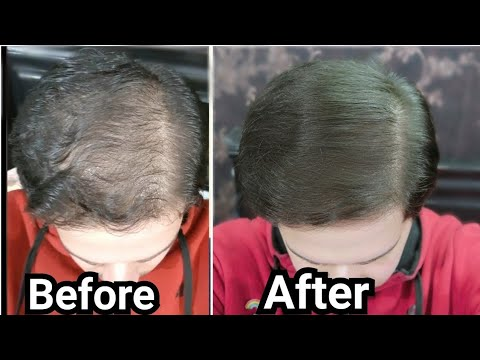 Download How to Use Rosemary Oil for Hair Growth, Baldness, Hair Loss, Thinning Hair (My Results w/ Pictures)