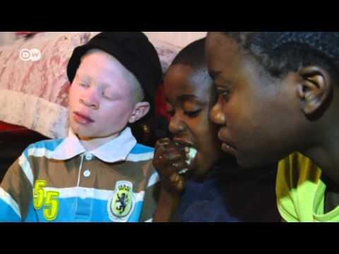 Kenya -  Albinos Face Deadly Superstition   Global 3000