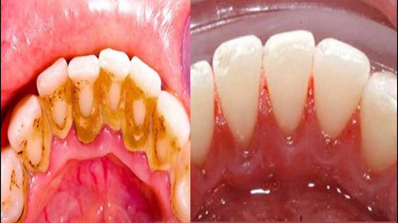 quitar sarro dientes bicarbonato