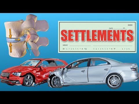 Herniated Disc Settlements (Car Accidents & more)