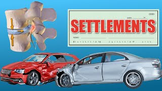 How Much is a Herniated Disc Worth? (Car Accident Settlements & More)