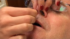 Dr. John Gilmore's Nose Hair Removal?  Oh Boy!  (Part One)