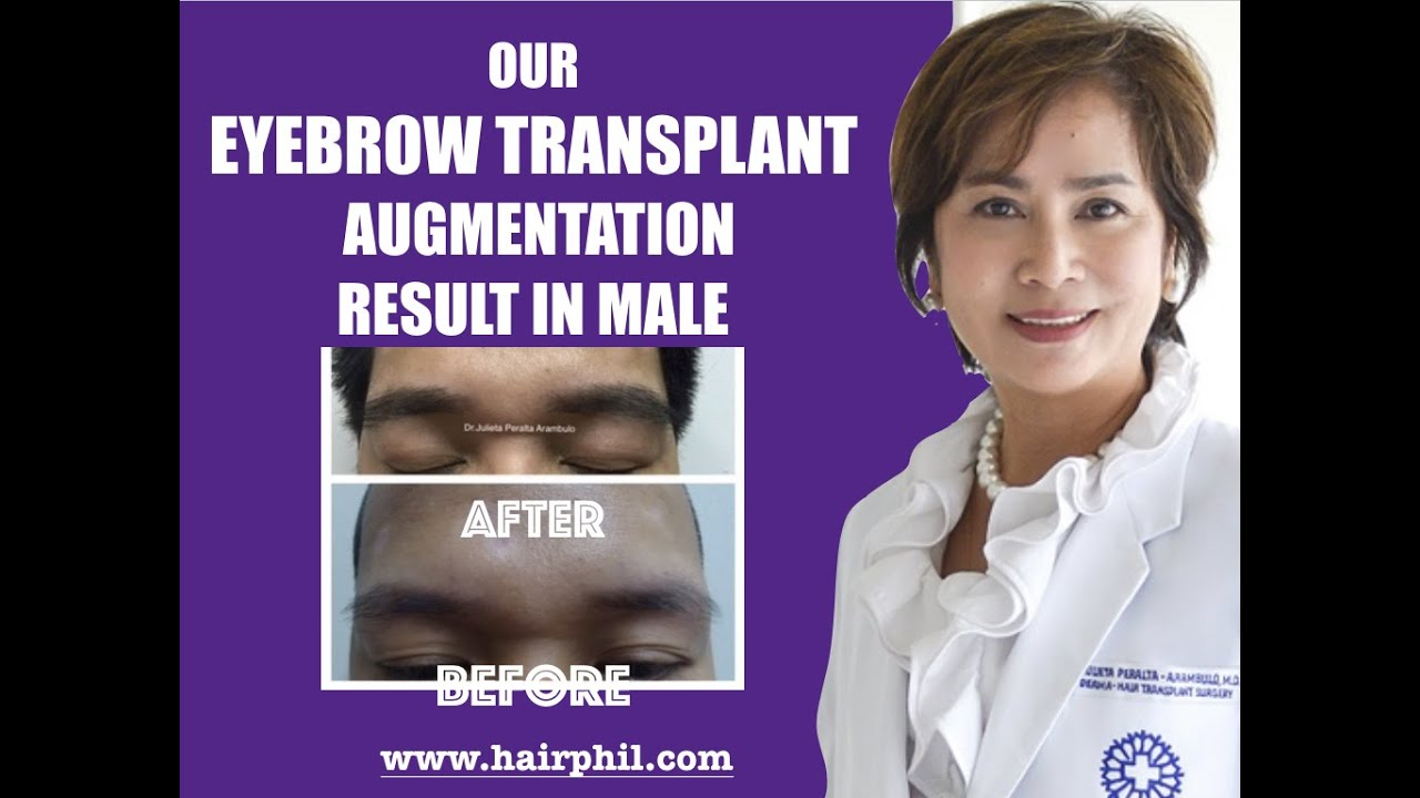 Eyebrow Transplant In The Philippines And Asia Youtube