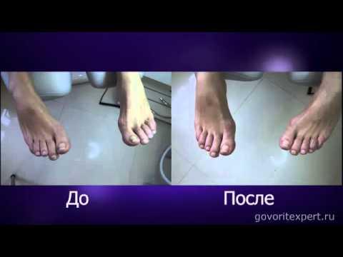 Аппаратный педикюр при вросшем ногте