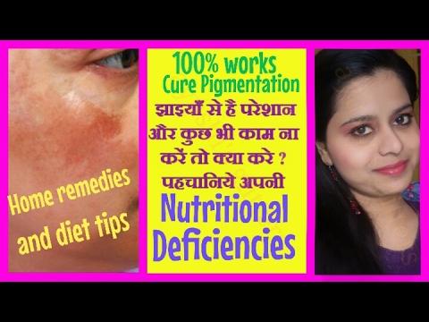 चेहरे की झाइयां हटाने के लिए क्या खाए और लगाएँ | How to Cure Pigmentation from face