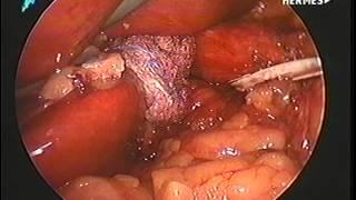 Cirurgia de hérnia de hiato do meu pai / my father