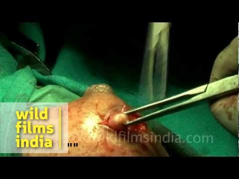 Breast cyst removal