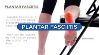 Plantar Fasciitis - Diagnosis