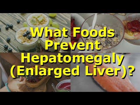 What Foods Prevent Hepatomegaly (Enlarged Liver)?