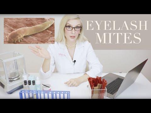EYELASH MITES