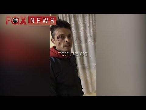 Fax News - Te rinjte rrihen brenda ne komisariatin e policise ne Bulqize