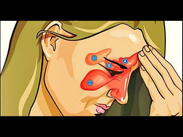 SINUSITE - Tratamento natural (DICAS + Receitinha ao final)