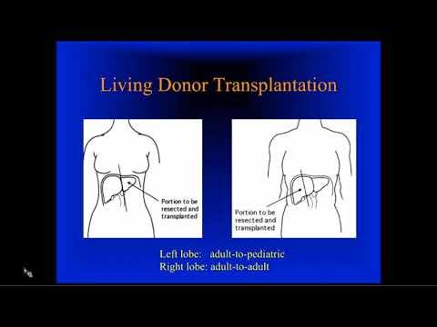 Live Donor Liver Transplantation