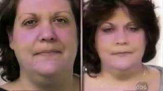 Micro Liposuction on The View - Dr. Loeb, New City Plastic Surgeon