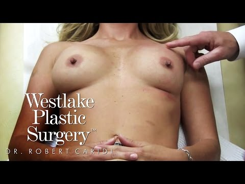 Breast Massage Video - Asymmetry with Implant Position - Dr Robert Caridi - Westlake Plastic Surgery from YouTube · Duration:  1 minutes 59 seconds