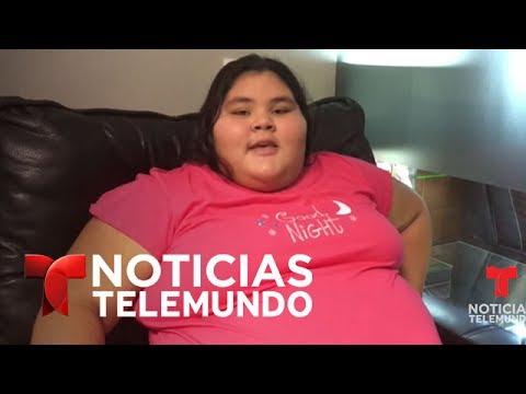 Adolescente más obesa del mundo adelgaza 198 libras para su fiesta de 15 años | Noticias | Telemundo