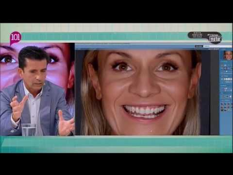 """Clínica Dental Cuevas Queipo - """"Estetica Dental, Cerec y Alineadent"""""""