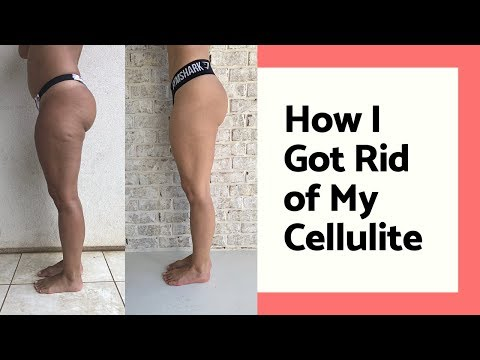 How I Got Rid of My Cellulite + Home Workout for Thigh Fat