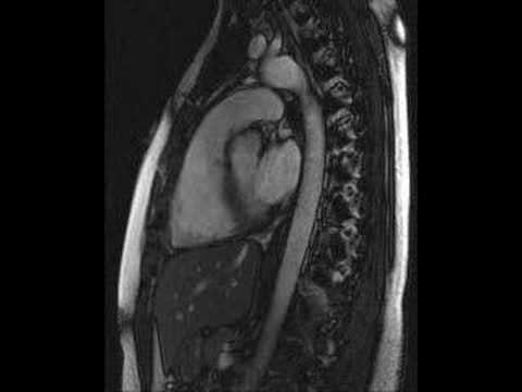 heart beat - MRI video of my beating heart (sagittal view) - YouTube