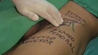 Del femoral reemplazo cadera anterior daño nervio de