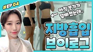 [리얼후기] 지방흡입 EP.마지막 l 지방흡입+얼굴지방…
