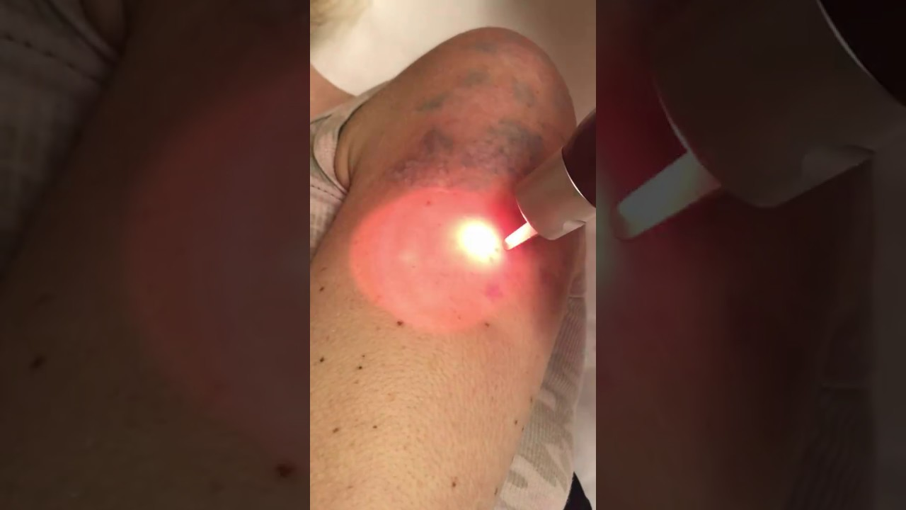 Picosure laser transcending tattoo removal treatments for Tattoo removal az