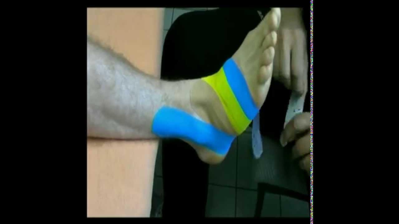 ChiroTape® Easy Fit   Sprunggelenk / Bänder Aussenseite   YouTube