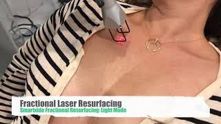 Neck and Chest Rejuvenation with Lasers, and Melapads,  PRP