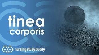Tinea Corporis - Nursing Study Buddy Video Library