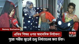 Exclusive: শরীরে গরম পানি ঢেলে, গরম খুন্তির ছ্যাঁকা দিয়ে গৃহকর্মীকে অমানবিক নির্যাতন! | Somoy TV