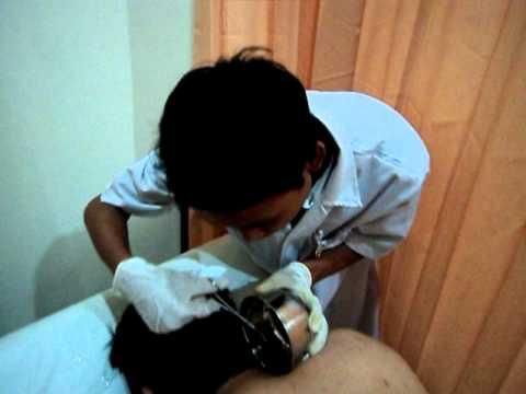 Hirudo Therapy - Klinik MULTI HIRUDO INDONESIA