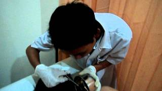 Video Hirudo Therapy - Klinik MULTI HIRUDO INDONESIA download MP3, 3GP, MP4, WEBM, AVI, FLV September 2017
