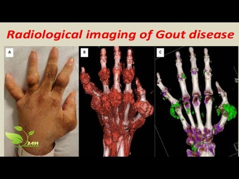 [ GOUT TREATMENT ] How To Cure Gout Naturally At Home & AMAZING Foods For Remove Gout | Health 24H