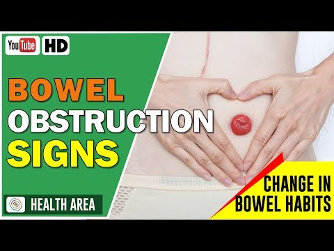 Diagnosing and Treating Bowel Obstruction - Bowel Cancer Symptoms