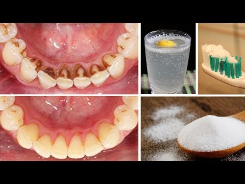How To Remove Plaque From Teeth At Home Naturally