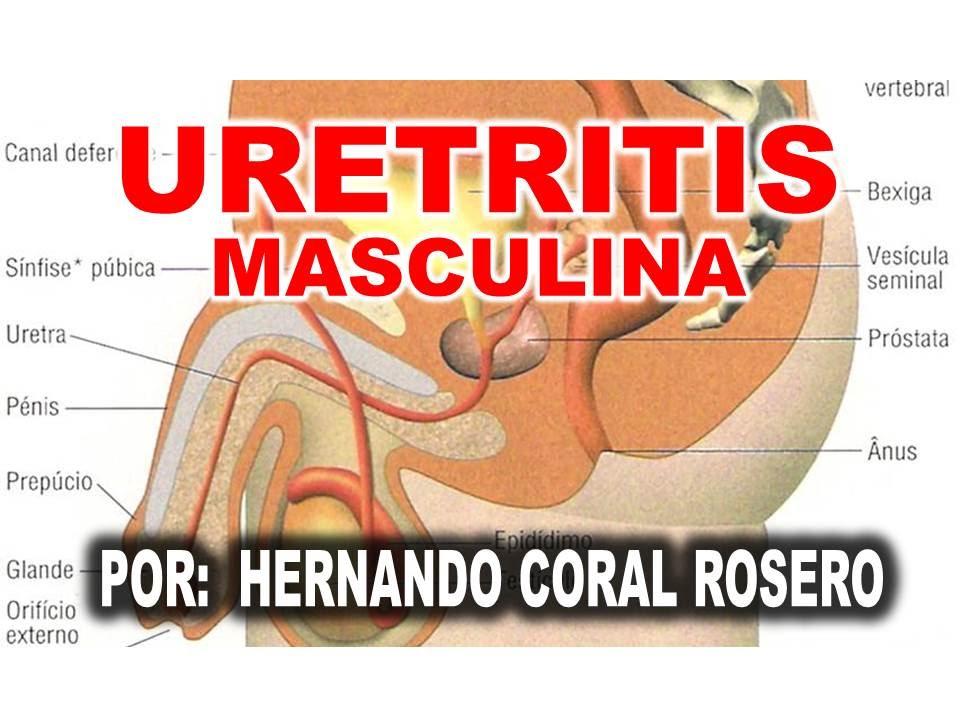 la inflamación agranda la próstata