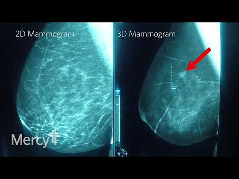 Example of 2D Mammogram vs. 3D Mammogram