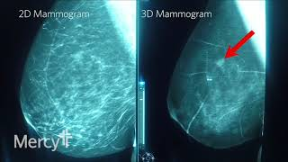 Three-dimensional or 3d mammography is one of the latest technologies used to screen for breast cancer. mercy offers in many its imaging centers, but it important understand ...