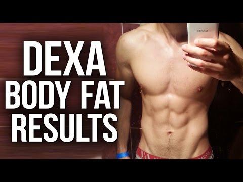 DEXA Scan Body Fat Results