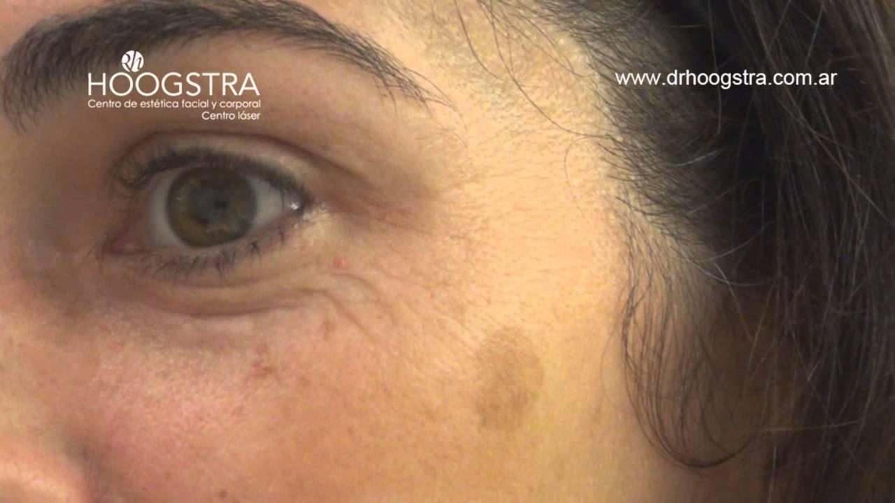 como se eliminan las manchas oscuras dela cara