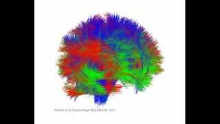 Whole Brain Global Tractography in 3D