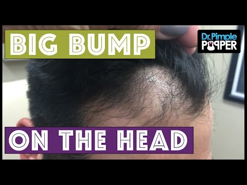 BIG BUMP ON THE HEAD!