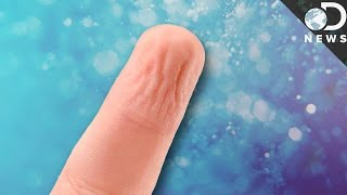 Why Do We Get Pruney Fingers In Water?