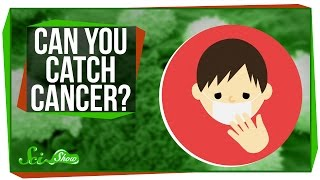 Can You Catch Cancer?