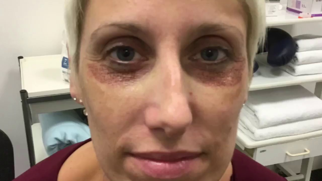 Dr Mark Aszkenasy Before And After Plexr Lower Eyelid